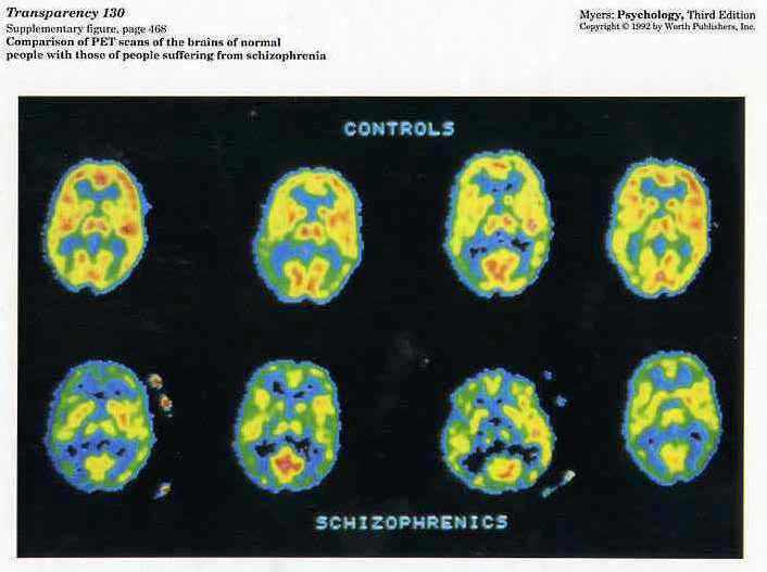 Brain Scan of Depressed Brain Scans of Schizophrenic Brains