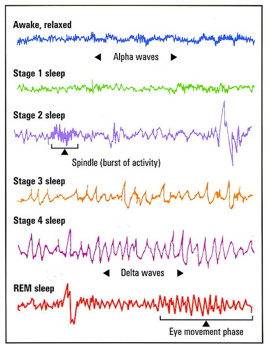 Eeg Brain Waves Sleep Sleep Brain Waves